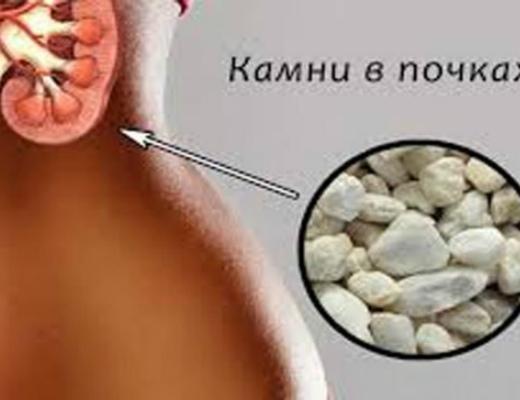 2 դեղամիջոցների զուգակցություն, որը կարող է թուլացնել միզածորանը՝ հեշտացնելով քարերի դուրսբերումը
