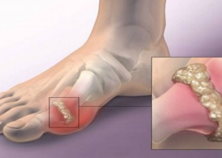 How-To-Quickly-Remove-Uric-Acid-Crystallization-From-Your-Body-To-Prevent-Gout-And-Joint-Pain-696x392