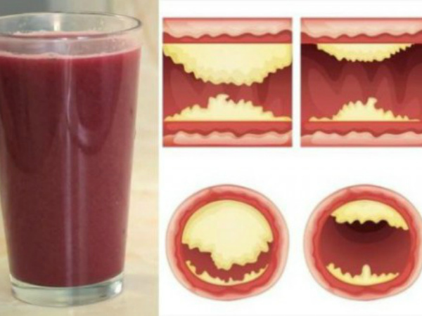 10-foods-that-unclog-arteries-naturally-and-protect-against-heart-attack-600x332