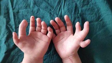 Photo of В Китае хирурги исправили руки девочки, родившейся с 14 пальцами