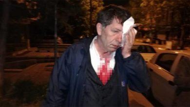 Photo of Թուրք լրագրող Յավուզ Դեմիրաղը մահակներով ծեծի է ենթարկվել