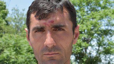 Photo of Վակունիս համայնքի ղեկավարին ծեծելու առնչությամբ նշանակվել են դատաբժշկական փորձաքննություններ