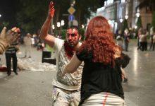 Photo of Թբիլիսիում բախումների հետեւանքով տուժածների թիվը հասել է 240-ի