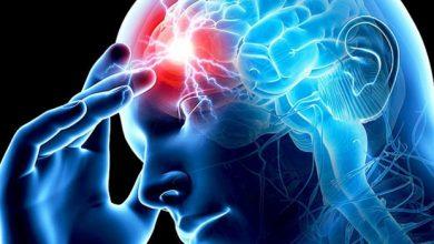 Photo of Պետական պատվերը գործում է գլխուղեղի իշեմիկ կաթվածի կլինիկական նշանների ի հայտ գալու պահից 24 ժամվա ընթացքում