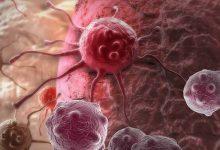 Photo of ՀՀ-ում տարեկան 10 հազար մարդու մոտ ախտորոշվում են քաղցկեղի տարաբնույթ տեսակներ. իրանցի բժիշկներ