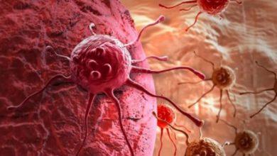 Photo of Պարզվել է քաղցկեղի զարգացման հիմնական պատճառը