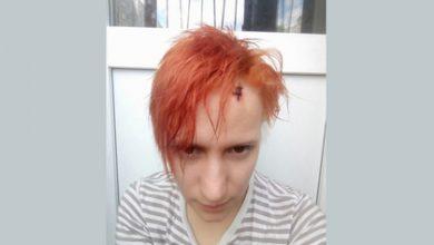 Photo of Российской журналистке выстрелили в голову