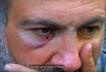 Photo of Հրապարակվել է «Ես մենակ չեմ» ֆիլմի թրեյլերը
