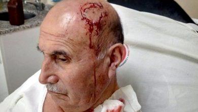 Photo of Разговор на курдском, стал причиной избиения пожилого человека в Турции