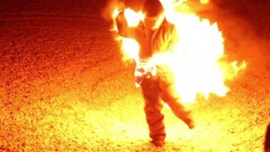 Photo of Արտառոց դեպք Երևանում. մարմնի 90 տոկոս այրվածքներով Այրվածքաբանության կենտրոն է տեղափոխվել մի տղամարդ