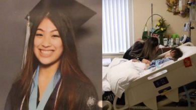 Photo of Պլաստիկ վիրահատությունը աղջկա համար ուղեղի լուրջ վնասի պատճառ է դարձել՝ խորտակելով նրա կյանքը