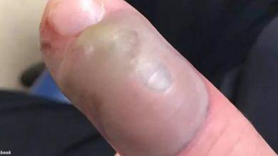 Photo of Женщина показала, почему категорически нельзя грызть ногти