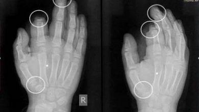 Photo of Ամանորի գիշերը պայթուցիկից ստացած վնասվածքից ամպուտացվել է 10-ամյա տղայի մատը
