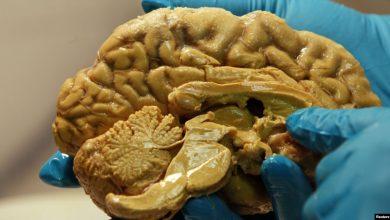 Photo of Նոր հետազոտություններ՝ էպիլեպսիայի բուժման համար