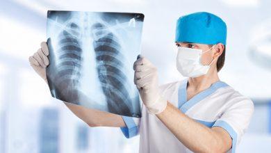 Photo of Рентген-кабинеты поликлиник Еревана в условиях чрезвычайного положения будут работать и на выходных