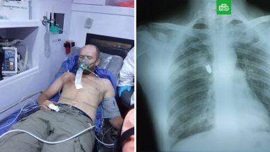 Photo of В Колумбии россиянину с огнестрельным ранением отказали в операции из-за коронавируса. ntv.ru