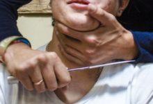 Photo of Вендетта в Гаваре: пробившись сквозь полицейский кардон, ворвались в больницу и перерезали горло двум пациентам