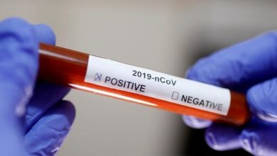 Photo of В Ширакской области в общей сложности от коронавируса вылечился 91 человек, из них 27 граждан выписались из больницы в течение 2 дней