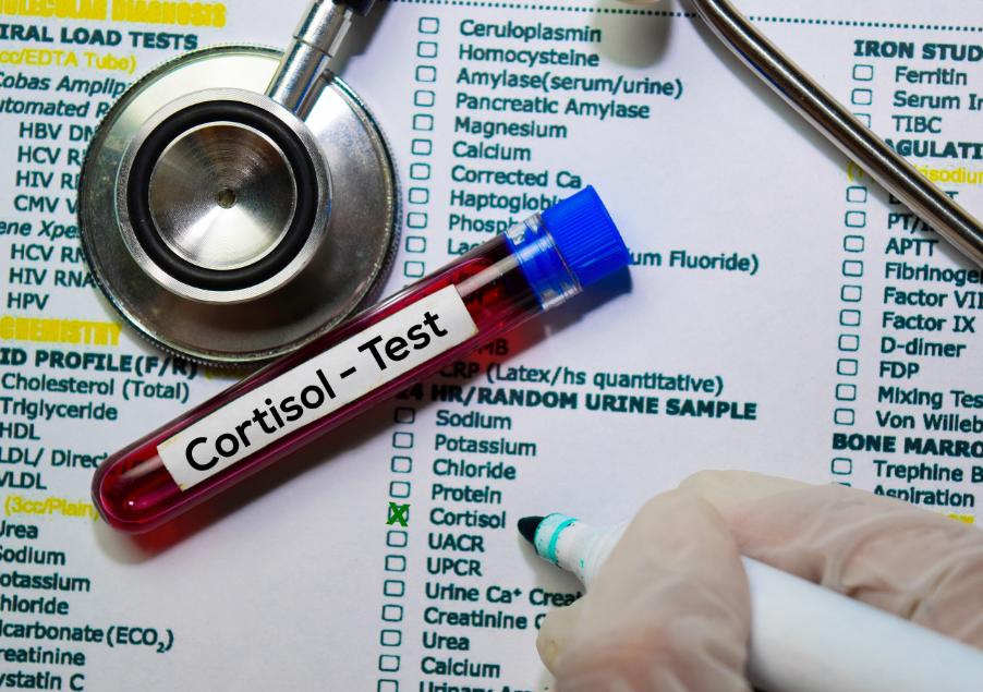 Photo of Գիտնականները պարզել են, որ կորտիզոլի մակարդակը կապված է Covid-19-ից մահվան ռիսկի հետ