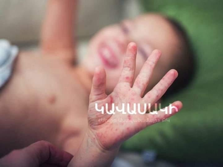 Photo of Մանրամասներ 4-ամյա երեխայի մասին, ում մոտ ախտորոշվել է Կավասակի սինդրոմ