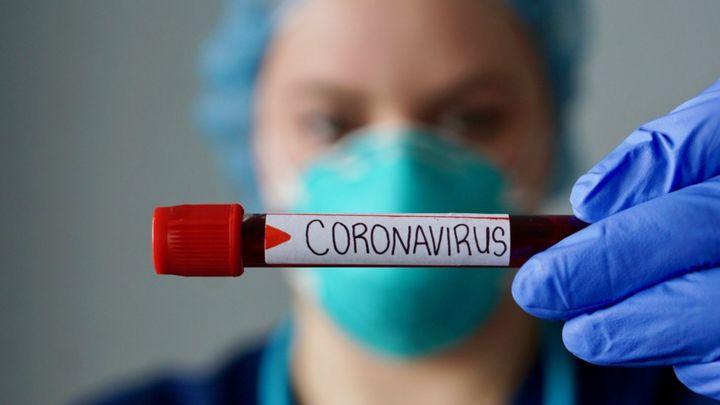 Photo of Общее число инфицированных коронавирусом в Армении превысило 157 тыс., за сутки скончались 19 человек