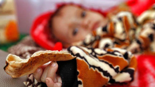 Photo of Коронавирус: миллионам грозит голод, в Австралии снова карантин