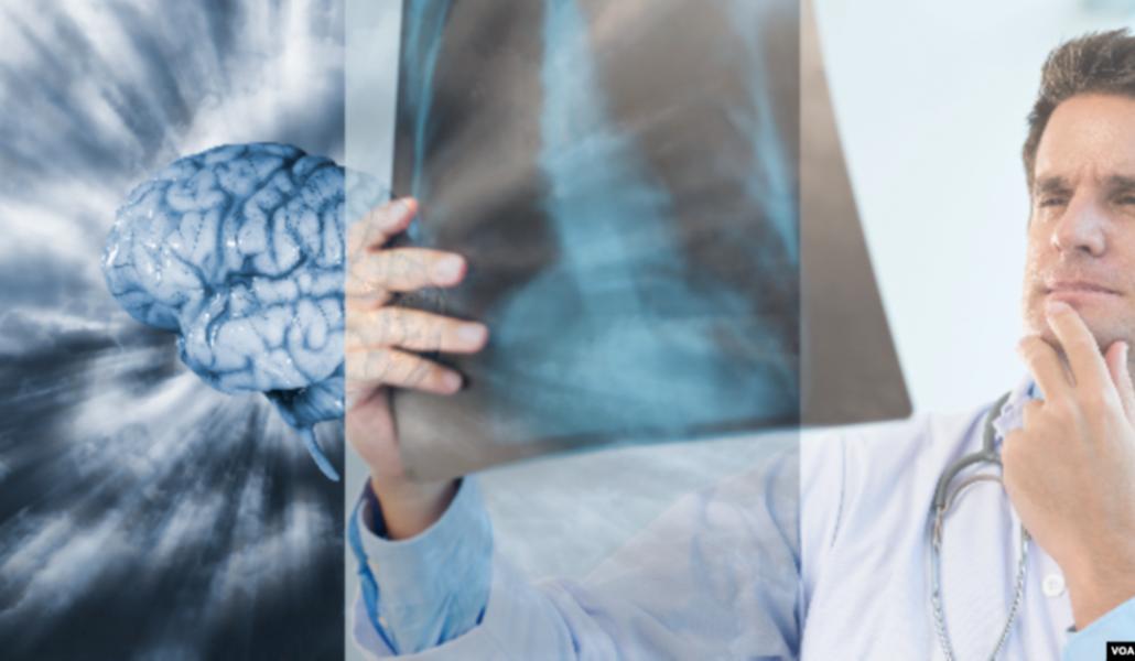 Photo of Ուղեղի ու թոքերի աշխատանքի խնդիրներ` կովիդից բուժվածներից ոմանց մոտ