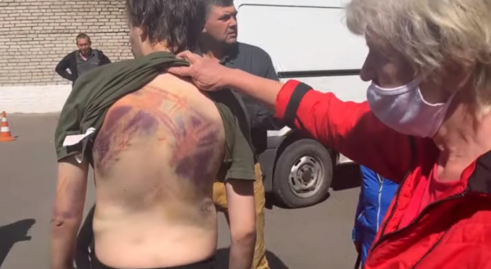 Photo of Ինչպես են դաժանաբար ծեծել. Մոգիլյովի մեկուսարանից դուրս եկած ցուցարարները՝  ոստիկանների մասին