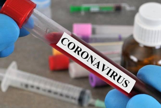 Photo of Արցախում հաստատվել է կորոնավիրուսային հիվանդության 4 նոր դեպք