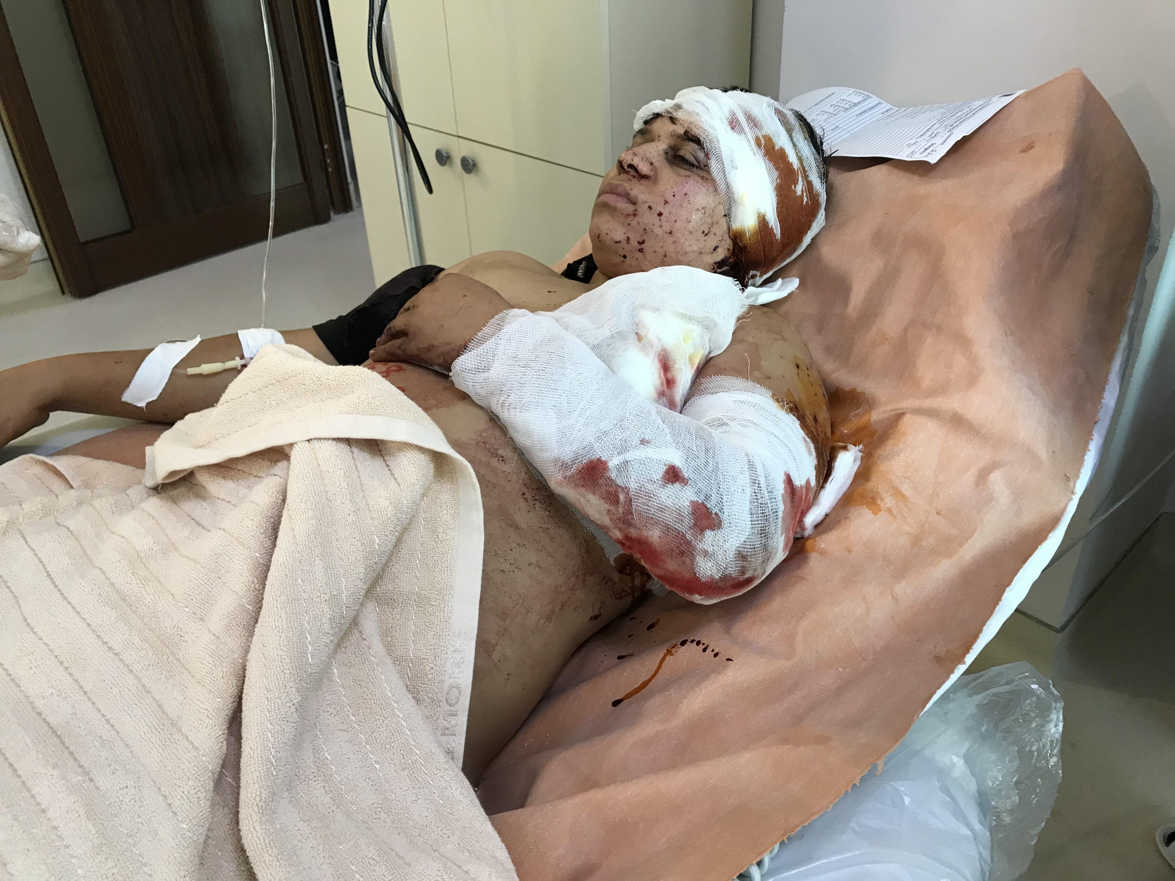 Photo of Офис защитника прав человека Республики Арцах начал миссию по установлению фактов