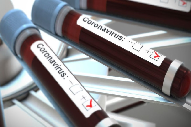Photo of Վրաստանում շարունակում է աճել կորոնավիրուսով վարակվածների թիվը