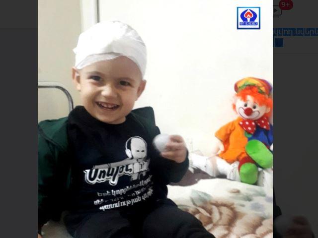Photo of После операции в области головы прошло всего два дня, а он уже улыбается