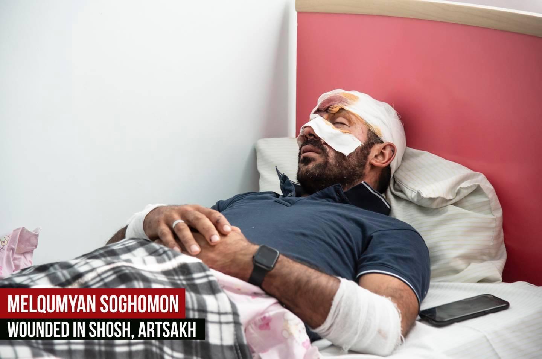 Photo of Սեպտեմբերի 27-ից ի վեր ադրբեջանական ագրեսիայի հետևանքով վիրավորում է ստացել ավելի քան 100 քաղաքացիական անձ