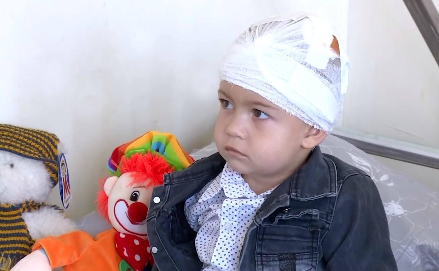 Photo of 2-ամյա տղան գլխի շրջանում կատարված բարդ վիրահատությունն անցել է լավ, երեխայի կյանքին այլևս վտանգ չի սպառնում