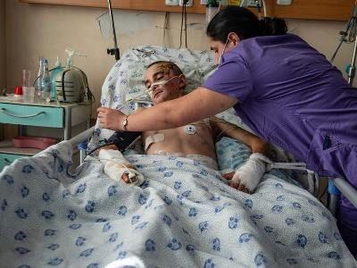 Photo of 13-летний Роберт 5 дней находился в коме: по машине ударил беспилотник
