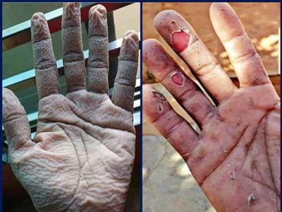 Photo of Զինվորի ու Բժշկի ձեռքերն այսօր այսպիսի տեսք ունեն. Արմեն Մուրադյան