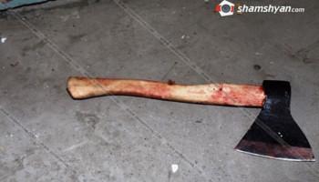 Երևանում 62-ամյա տղամարդուն կինն է կացնահարել