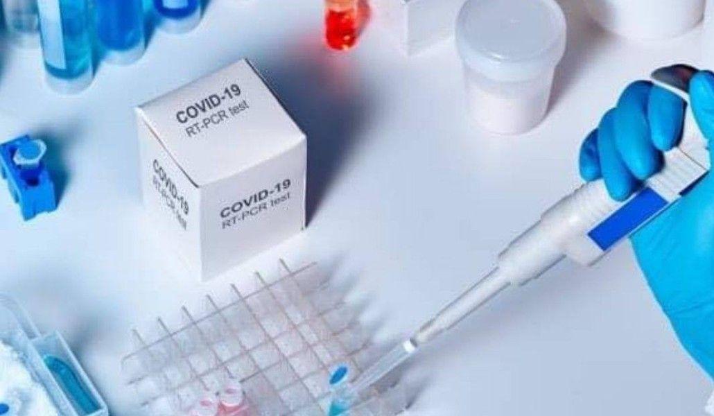 Photo of Կորոնավիրուսային հիվանդության 9 նոր դեպք՝ Արցախում