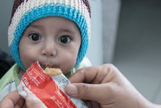 Photo of Եմենում միլիոնավոր երեխաների սով է սպառնում. ՄԱԿ