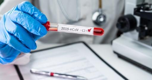 Photo of В Армении за последние сутки подтверждено 1.863 новых случая инфицирования COVID-19, скончались 42 человека